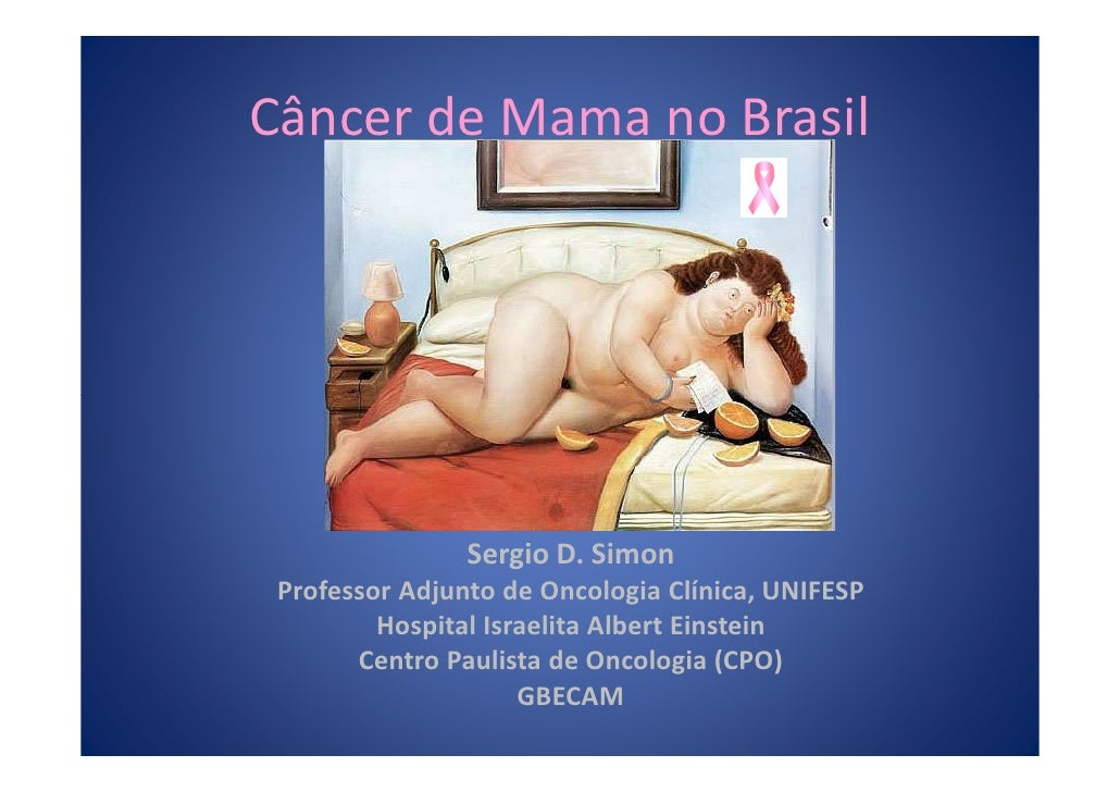 Câncer de Mama no Brasil                Sergio D. Simon Professor Adjunto de Oncologia Clínica, UNIFESP         Hospital I...