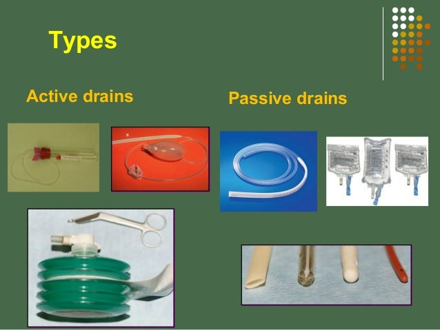 types of drains