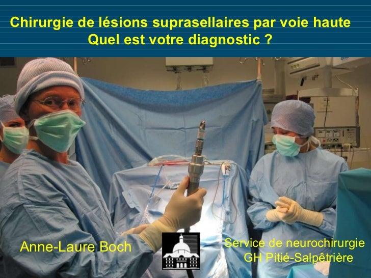 Chirurgie de lésions suprasellaires par voie haute Quel est votre diagnostic ? Anne-Laure Boch Service de neurochirurgie G...