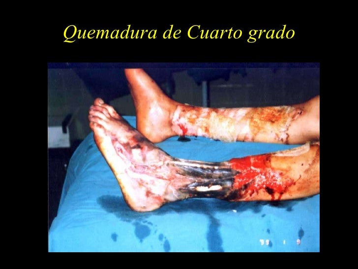 Stunning Quemadura Cuarto Grado Photos - Casas: Ideas & diseños ...