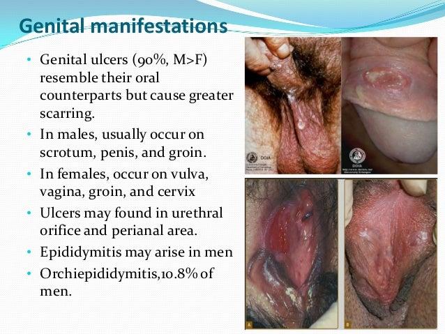 Chrons disease vaginal