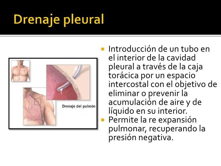    Introducción de un tubo en    el interior de la cavidad    pleural a través de la caja    torácica por un espacio    i...