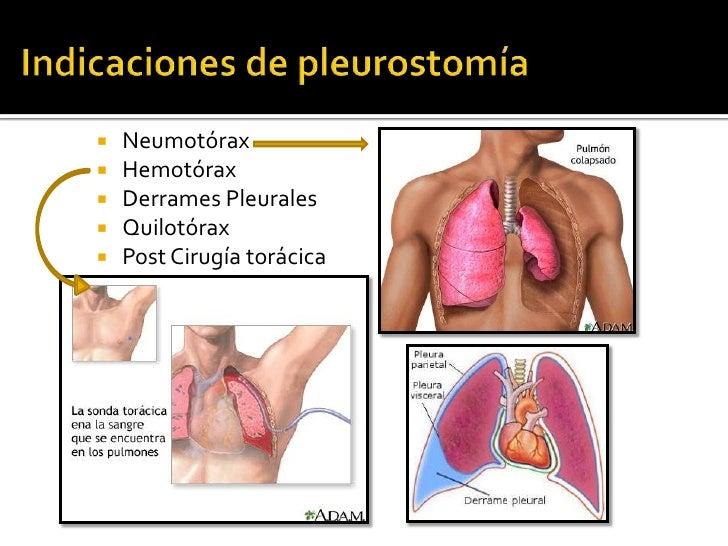    Neumotórax   Hemotórax   Derrames Pleurales   Quilotórax   Post Cirugía torácica