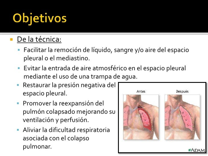    De la técnica:     Facilitar la remoción de líquido, sangre y/o aire del espacio        pleural o el mediastino.    ...