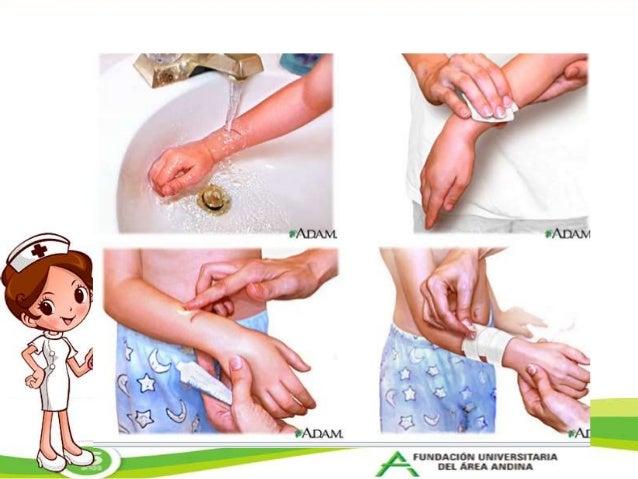 Resultado de imagen para heridas limpiar