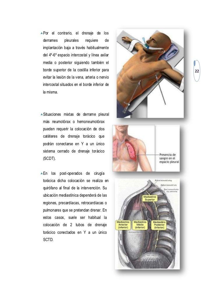 Drenaje torácico CUIDADOS DE ENFERMERIA - ENFERMERIA DE URGENCIAS EME…
