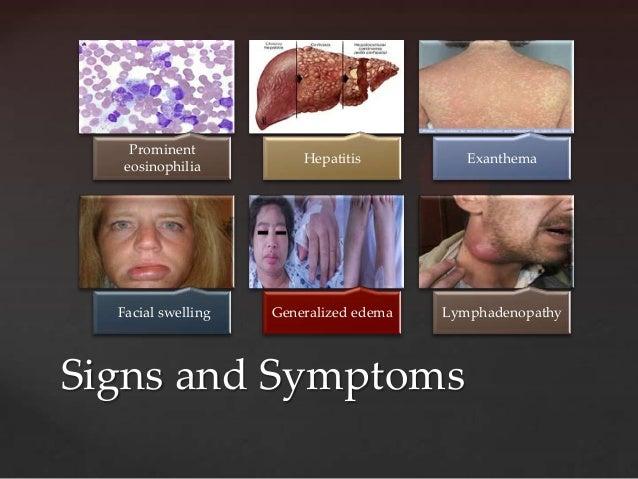 Prominent                        Hepatitis          Exanthema   eosinophilia  Facial swelling   Generalized edema   Lympha...