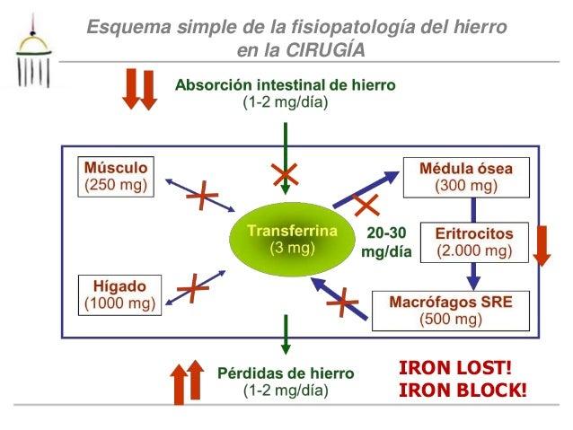 Metabolismo Hierro. Dr García Erce. sevilla 2014