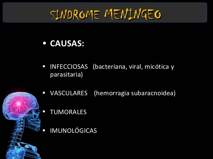 Sindrome Meningeo Slide 3