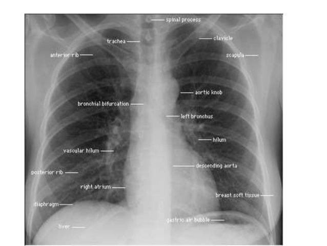 Clavicle Xray Dr gordhan chest xray