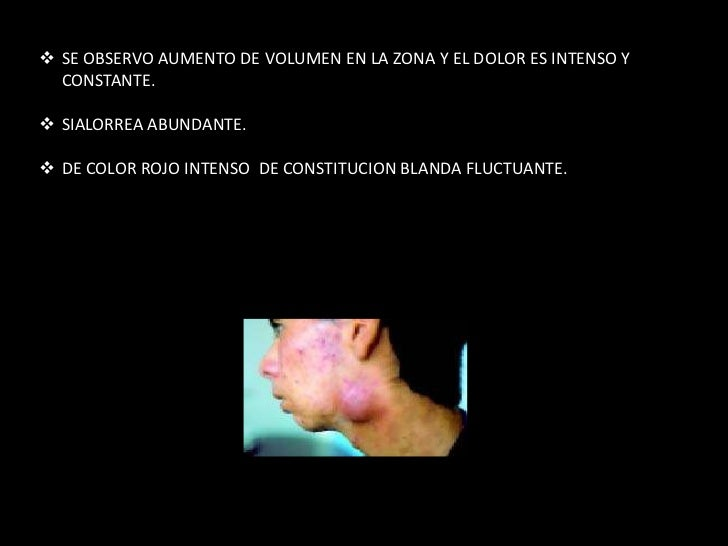 Padece de tuberculosis - 2 8