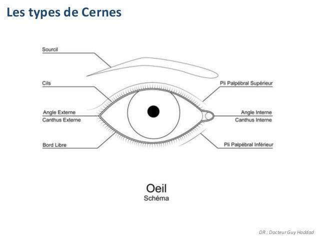 Les types de Cernes                      DR : Docteur Guy Haddad