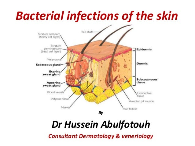 dr hussein, bacterial infec of the skin diagram of hiv infection ro3 diagram of infection