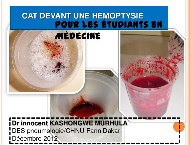 CAT DEVANT UNE HEMOPTYSIE           Pour les étudiants en           MédecineDr innocent KASHONGWE MURHULADES pneumologie/C...