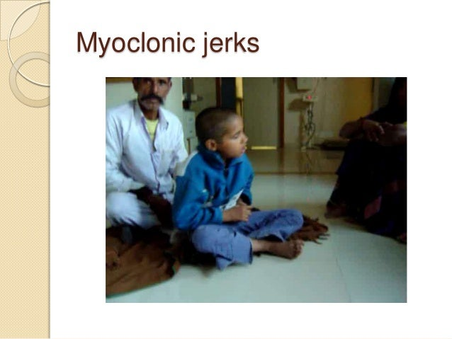 Drive through child neurology with special reference