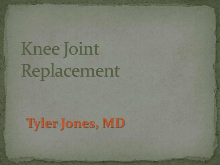 Knee JointReplacement<br />Tyler Jones, MD<br />