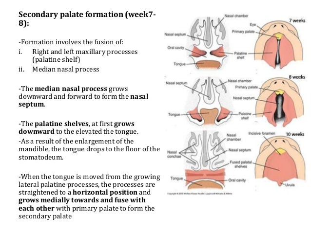 the gallery for gt cleft lip and palate diagram