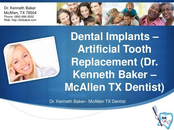 Dr. Kenneth Baker<br />McAllen, TX 78504<br />Phone: (956) 686-2052<br />Web: http://drkbaker.com<br />Dental Implants – A...