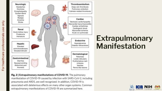 Extrapulmonary Manifestation For healthcare professionals use only.