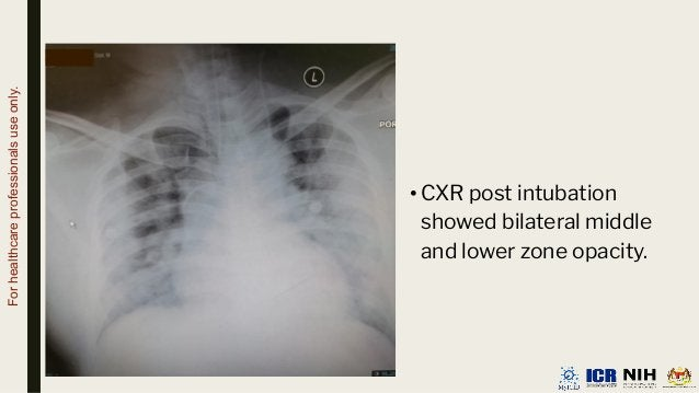 •CXR post intubation showed bilateral middle and lower zone opacity. For healthcare professionals use only.