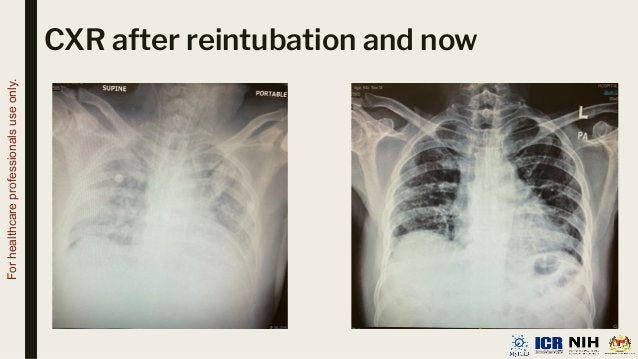 CXR after reintubation and now For healthcare professionals use only.