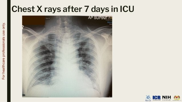 Chest X rays after 7 days in ICU For healthcare professionals use only.