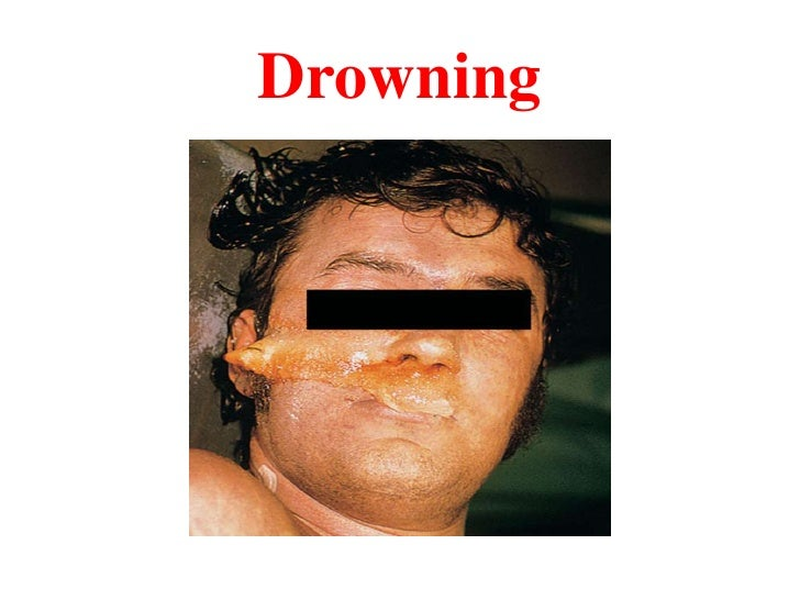 Drowning<br />