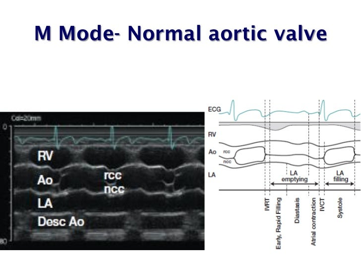 Echo assessment of Aortic Stenosis