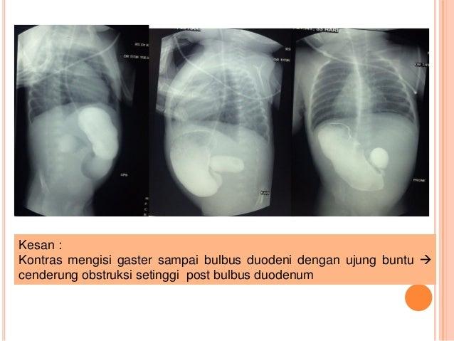 """Appendektomie (""""Blinddarmentfernung"""")"""