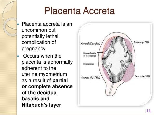 Morbidly Adherent Placenta Conservative Management