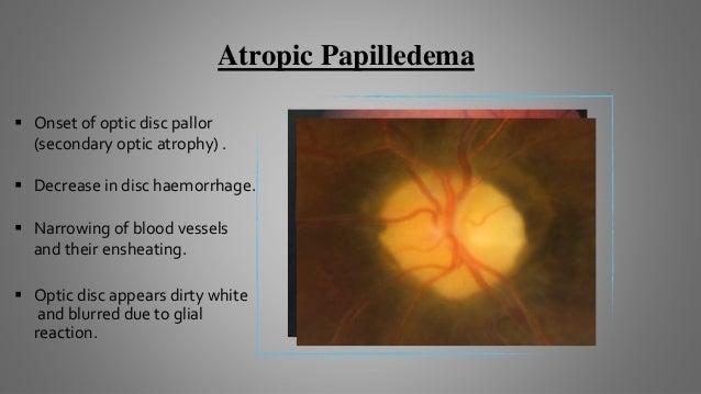 Papilledema Grading System (Frisen Scale)