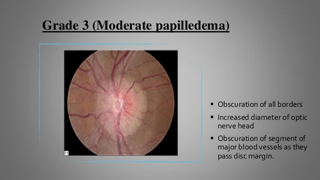 Grade 4 (Marked papilledema)  Elevation of entire nerve head  Obscuration of all the borders  A segment of major vessel...