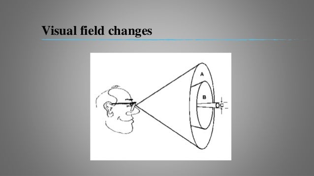  Enlargment of blind spot.  Earliest loss of visual field commonly involves inferior nasal quadrent.  Peripheral concen...