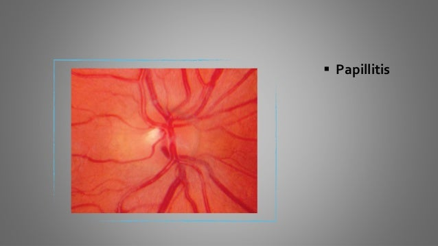  Pseudopapilledema - Drusen of Optic disc