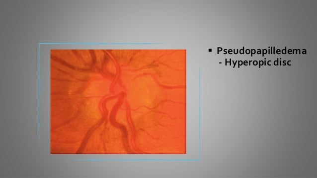  Tilted optic disc