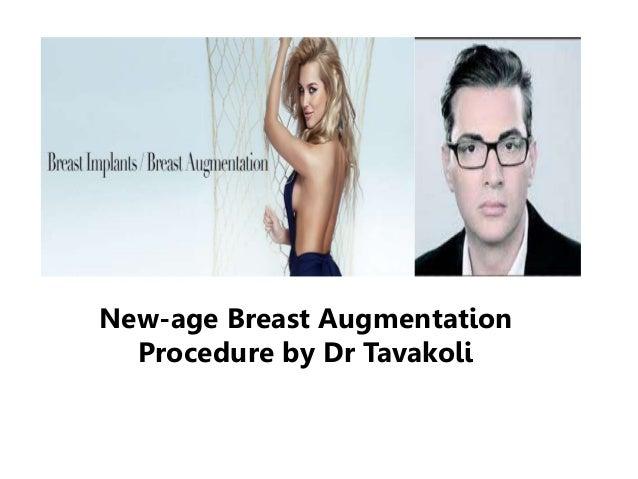 New-age Breast Augmentation Procedure by Dr Kourosh Tavakoli
