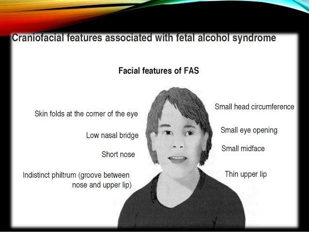 • a. Small palpebral fissures • b. Thin vermilion border • c. Smooth philtrum