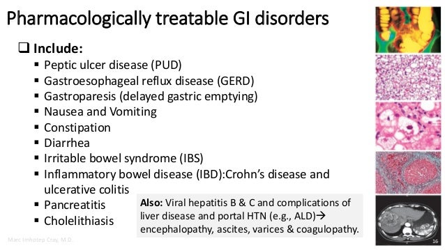 Gastroparesis bacterial overgrowth adhesions