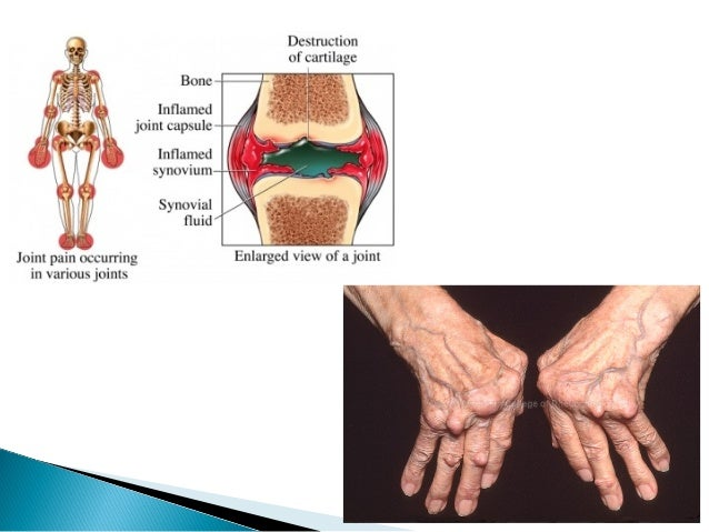 NSAIDs Afford symptomatic relief  Reduce inflammation, pain, swelling and morning stiffness  Improve joint function  D...