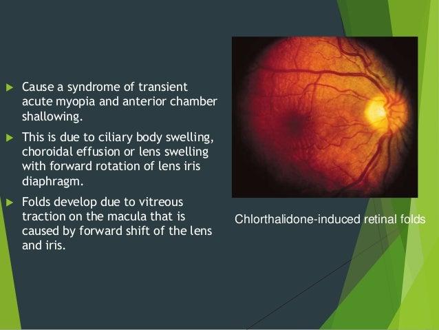 Drug Toxicity Of Posterior Segment Of Eye