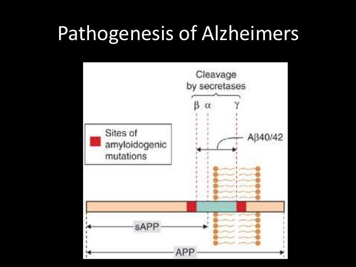 an introduction to the life with alzheimers disease Introduction 3 researching your  alzheimer's disease: care and support at  the end of life page no  advanced stage of alzheimer's disease will take new.
