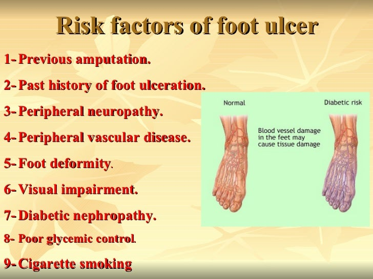 diabetic foot ulcers in depth analysis