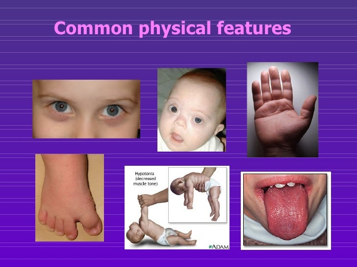Downs syndrome facial characteristics