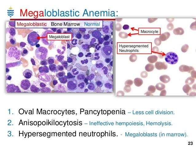 megaloblastic anemia Thiamine-responsive megaloblastic anemia syndrome (trma) is characterized by megaloblastic anemia, sensorineural hearing loss, and diabetes mellitus onset of.