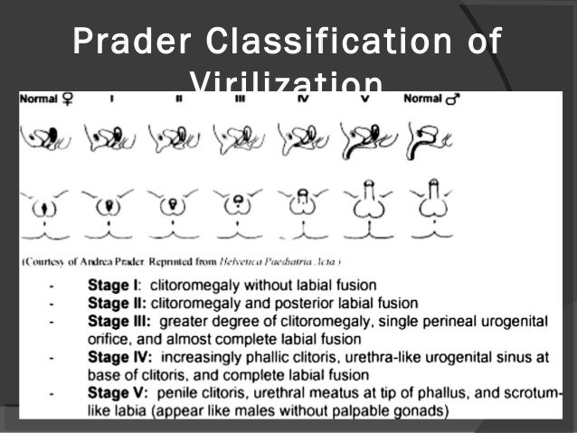 Disorders of sexual development classification
