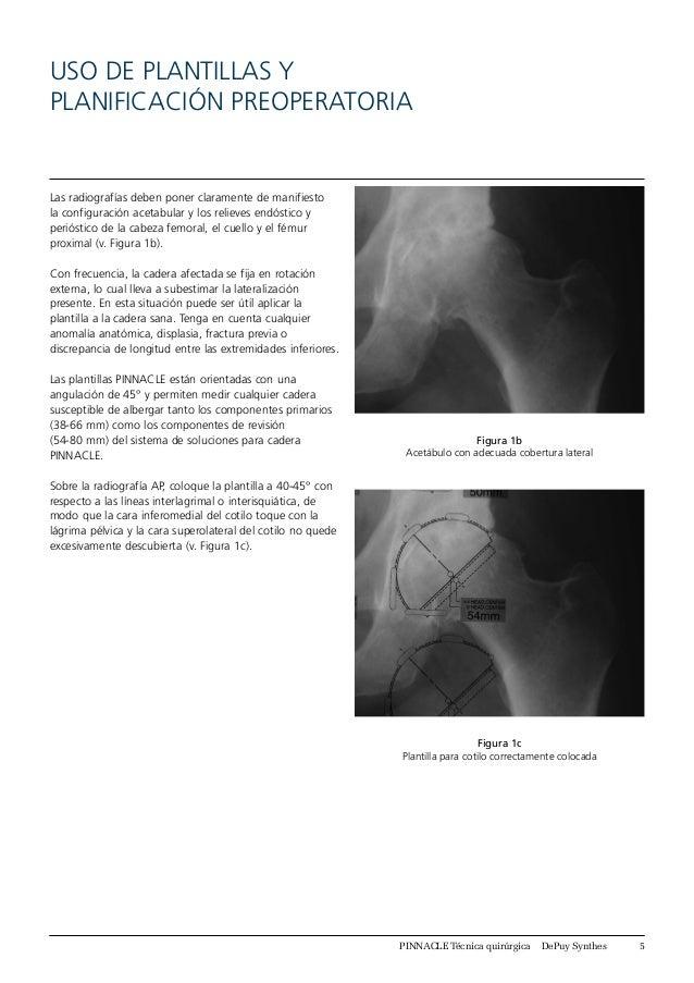 Increíble Anatomía Rebaje Lateral Fotos - Imágenes de Anatomía ...
