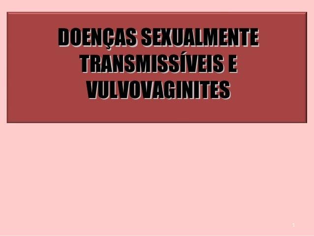 1 DOENÇAS SEXUALMENTEDOENÇAS SEXUALMENTE TRANSMISSÍVEIS ETRANSMISSÍVEIS E VULVOVAGINITESVULVOVAGINITES