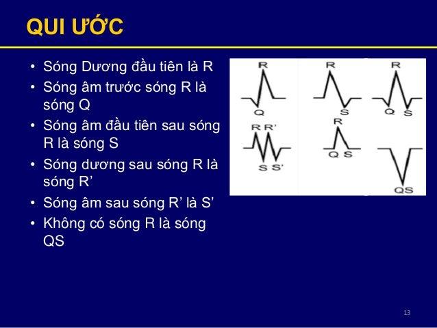 13 QUI ƢỚC • Sóng Dương đầu tiên là R • Sóng âm trước sóng R là sóng Q • Sóng âm đầu tiên sau sóng R là sóng S • Sóng dươn...