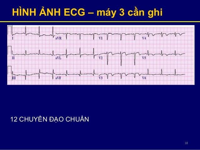 18 HÌNH ẢNH ECG – máy 3 cần ghi 12 CHUYỂN ĐẠO CHUẨN