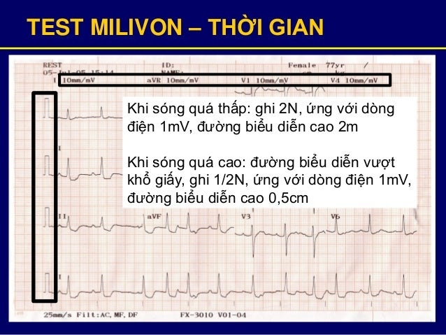 TEST MILIVON – THỜI GIAN Khi sóng quá thấp: ghi 2N, ứng với dòng điện 1mV, đường biểu diễn cao 2m Khi sóng quá cao: đường ...